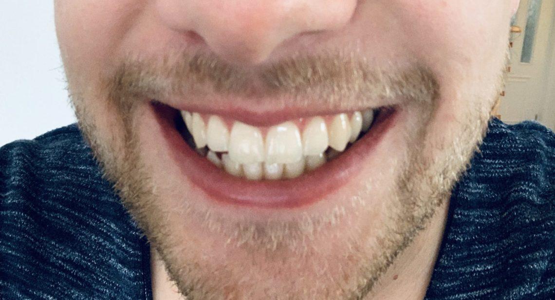 smilemeup08